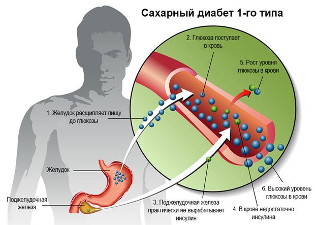 Схематическое отображение причин и симптомов возникновения первого типа диабета