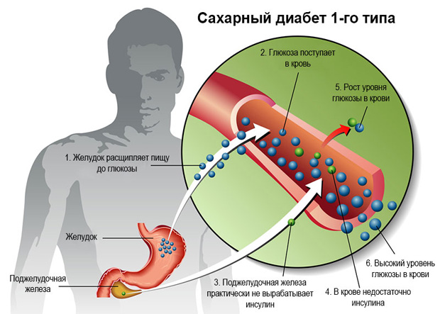 Схематическое изображение симптомов и причин сахарного диабета первого типа