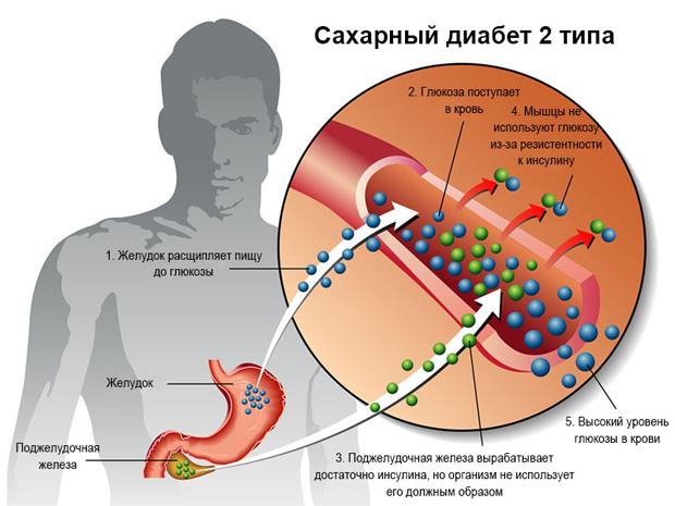 Схематическое изображение симптомов и причин сахарного диабета второго типа