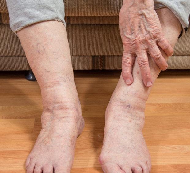 Лечение отека стопы в домашних условиях